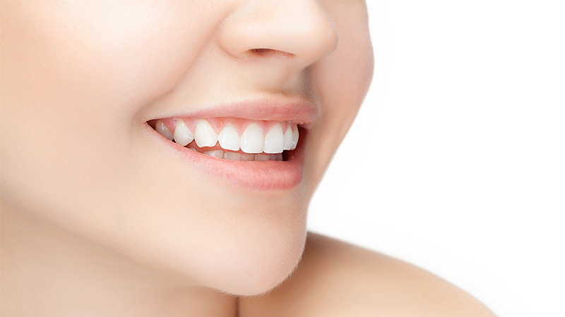 teeth whitening singapore dentist